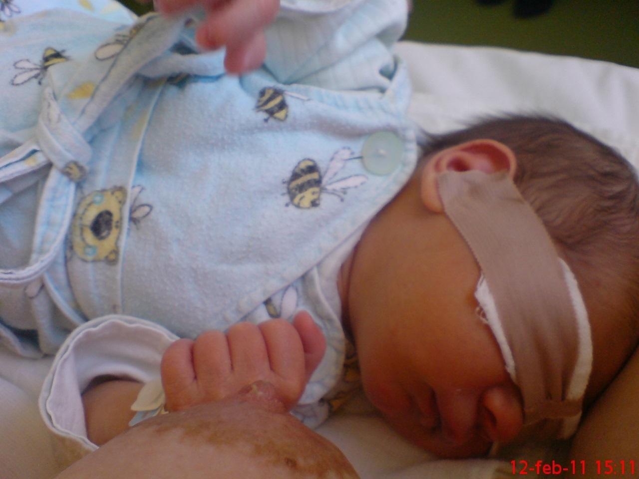 közös kenőcs szoptatáshoz a kar ízületi fájdalmainak kezelése