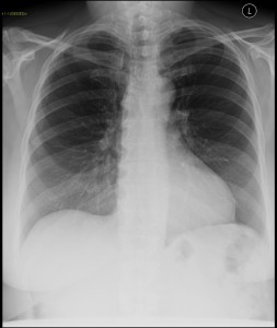 szoptatós anyák tüdőszűrő vizsgálata