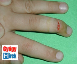phalangeal_injuries